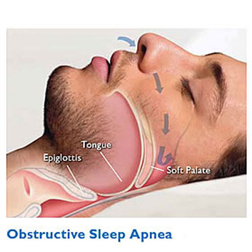 Normal_and_Obstructive_Sleep_Apnea